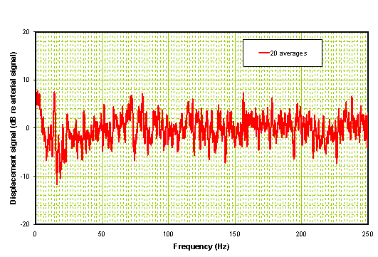 Processed frequency domain signal of hemorrhagic stroke patient
